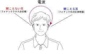 クロス補聴器